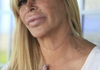 big ang neck scar